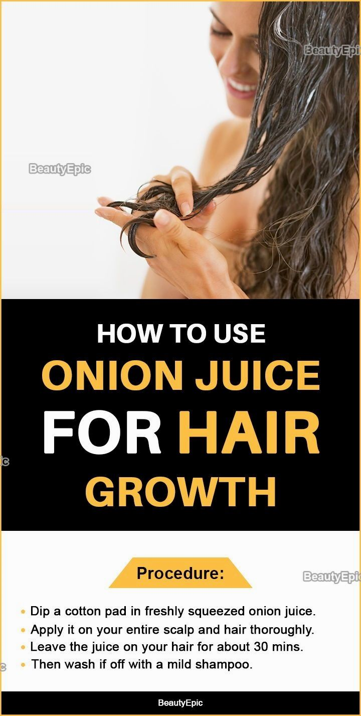 garlic hair products onion juice for baldness reviews