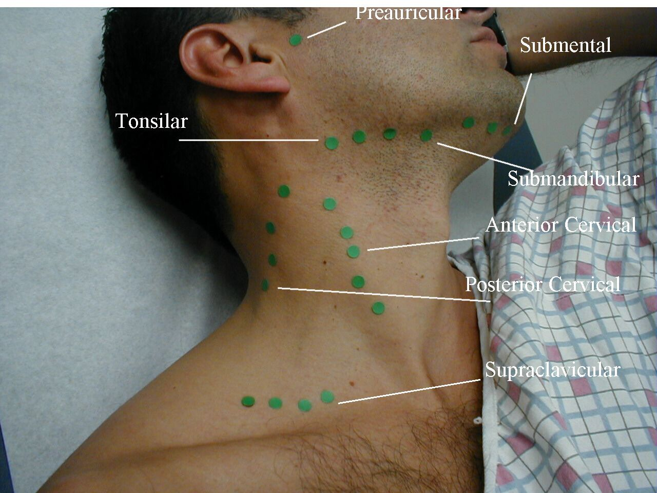 How to examine head and neck lymph nodes Read more at: http://forum ...