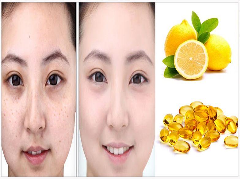 Cara Menghilangkan Flek Hitam Di Wajah Dengan Lemon