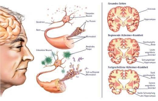 7 sinais de Alzheimer e remédios naturais para evitar a doença | Cura pela Natureza.com.br