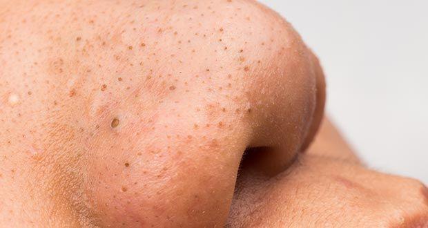 peau grasse point noir