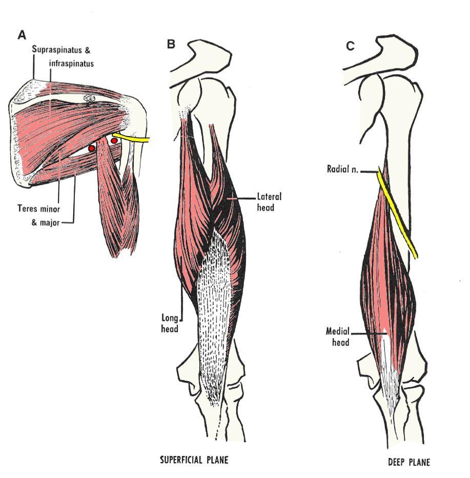 las tres cabezas del triceps | anatomía | Pinterest | Anatomía