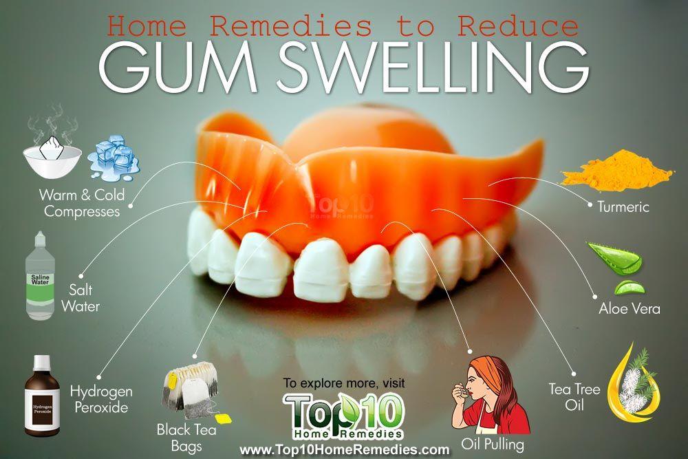 Home Remedies To Reduce Gum Swelling Top 10 Home Remedies Swollen Gum Gum Disease Treatment Gum Health