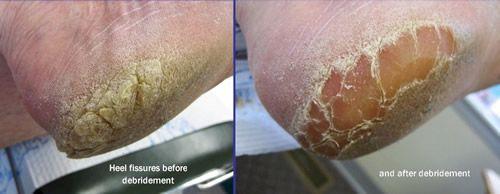 Cracked Heels and Heel Fissures | Lexington Podiatry