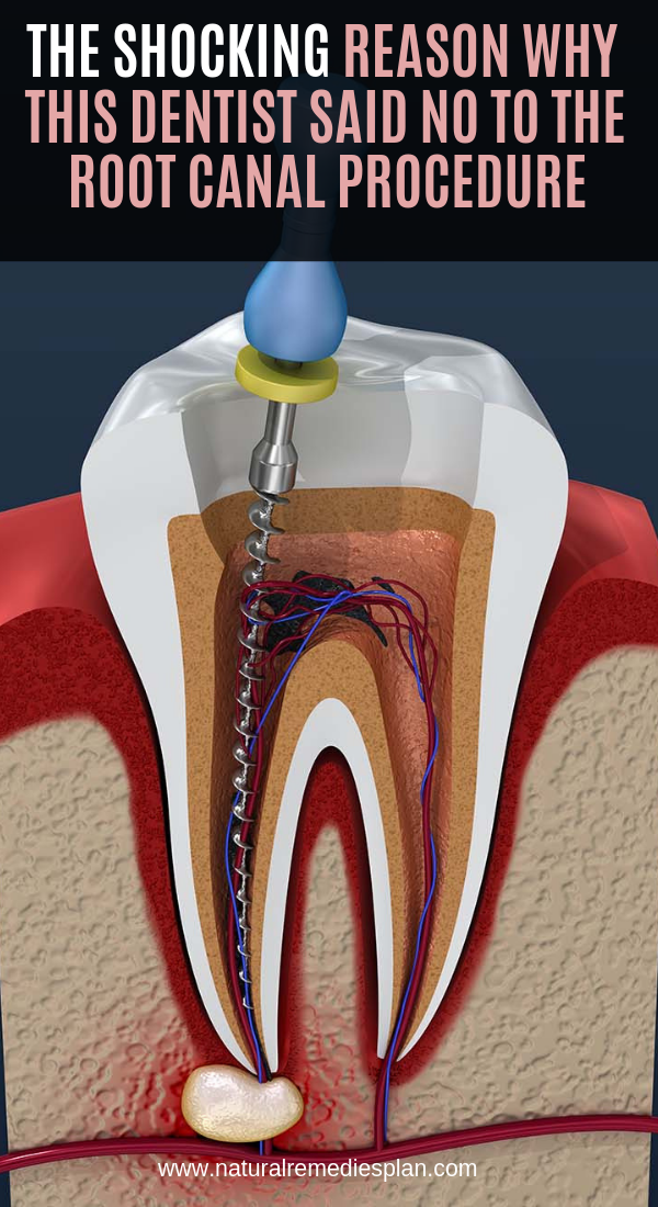 How Long Does A Root Canal Take To Complete - Trending ...