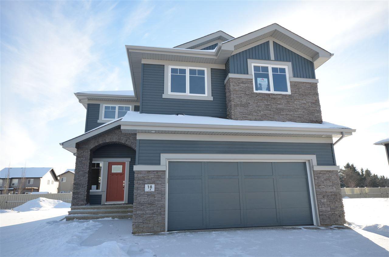 46 Edgewater Terrace: St. Albert House for sale : MLS(r) # E4004577