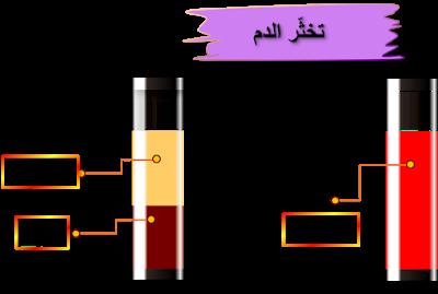 تركيبة الدم مكونات الدم Bar Chart Chart