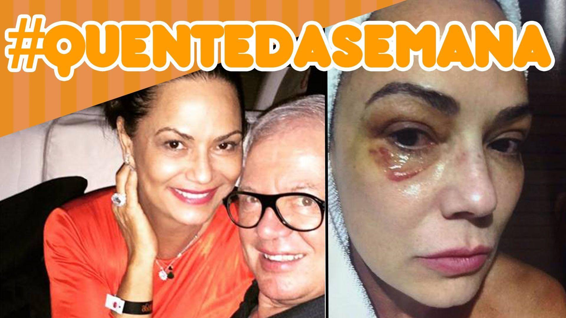 Sobre Luiza Brunet, o ex-namorado Lirio e violência contra a mulher #QuenteDaSemana21 @PopZoneTV  http://popzone.tv/2016/07/sobre-luiza-brunet-o-ex-namorado-lirio-e-violencia-contra-a-mulher-quentedasemana21-popzonetv.html