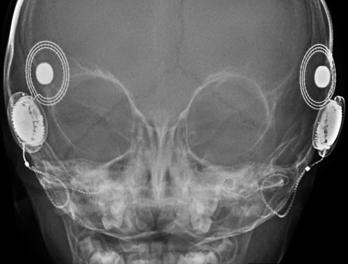 Cochlear implants in your head on x ray the thin wires goes inside cochlear implants in your head on x ray the thin wires goes inside the cochlea ccuart Images