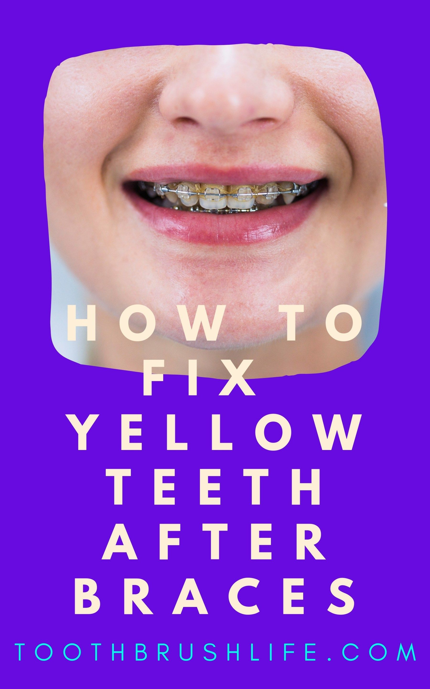 How long does it take to remove fixed braces