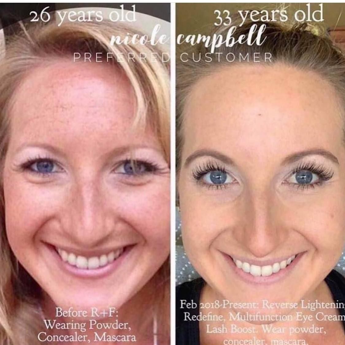 Marionette Lines 5 Tips For How To Look 26 At 48 Naturally In 2020 Clear Skin Tips Skin Tightening Cream Anti Aging Skin Products