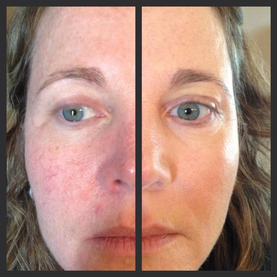Watch How to Remedy Rosacea video