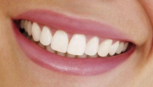 boca e dentes perfeitos - Pesquisa Google