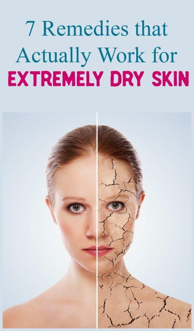 Tried u True Ways to Combat EXTREMELY Dry Skin  Luxury Beauty