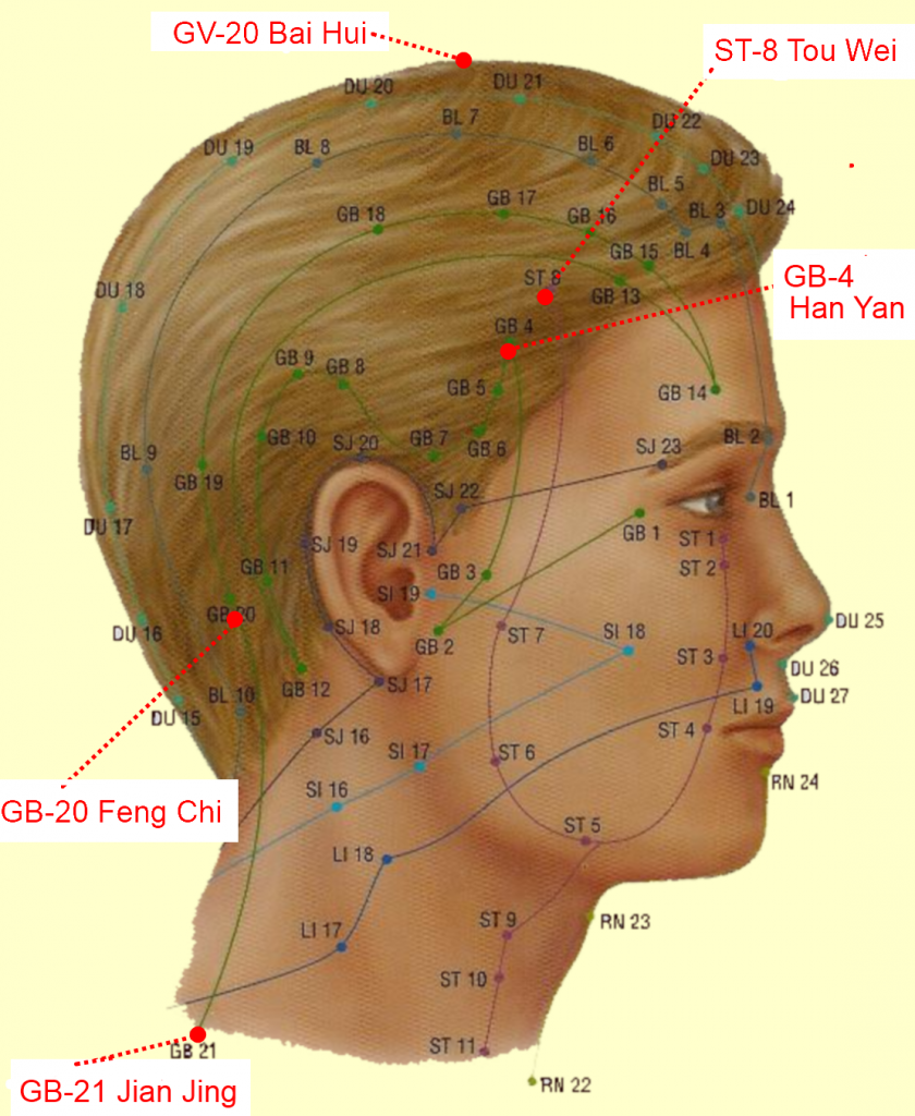 Rub out Migraine Headaches with 5 Chinese Acupressure Points
