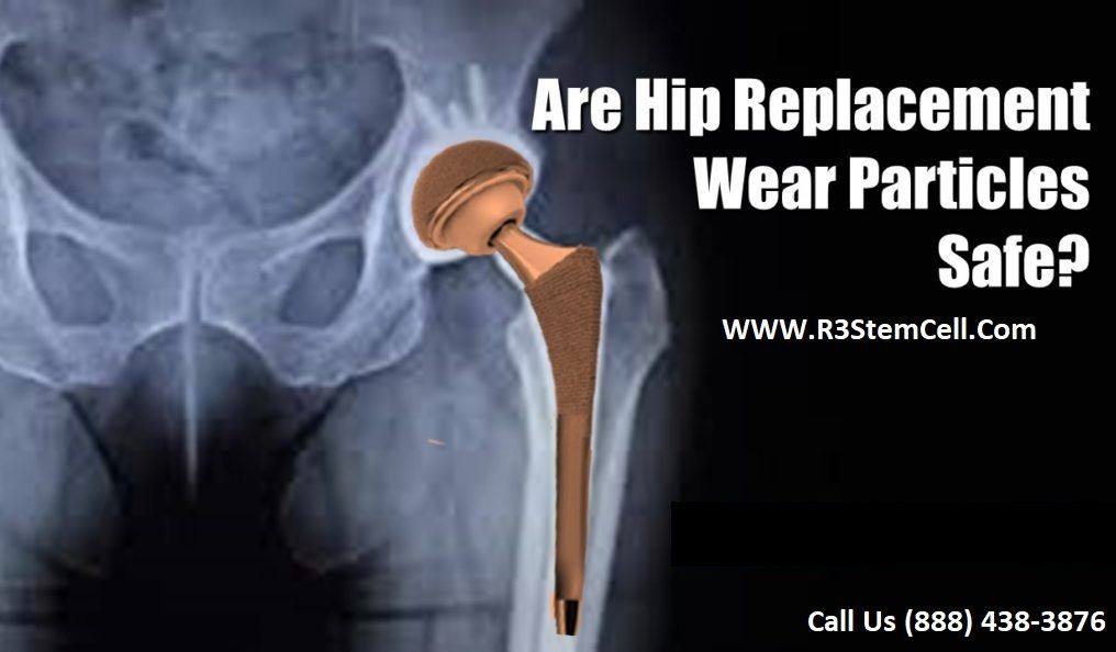 Pin On Stem Cell Treatments For Hip Arthritis