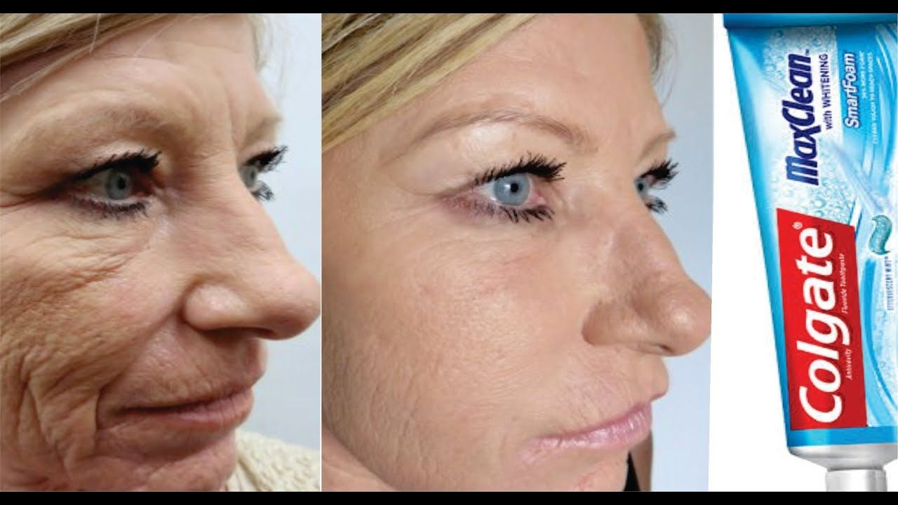 If Only You Knew Toothpaste Can Remove Wrinkles Forever Youtube Face Cream For Wrinkles Wrinkle Remover Mouth Wrinkles