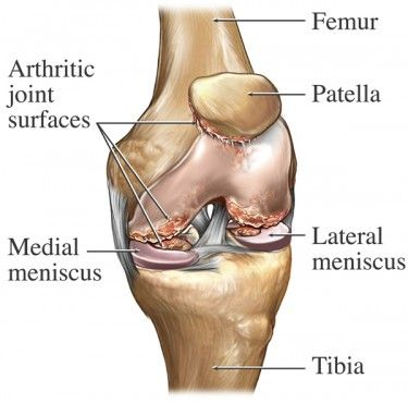 1000 images about knee pain on pinterest woking knee pain and  : knee pain diagram - findchart.co