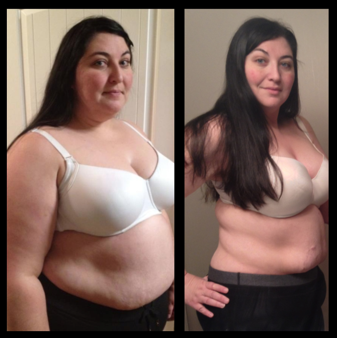 3 Months After Gastric Sleeve Months After Gastric Bypass Weight
