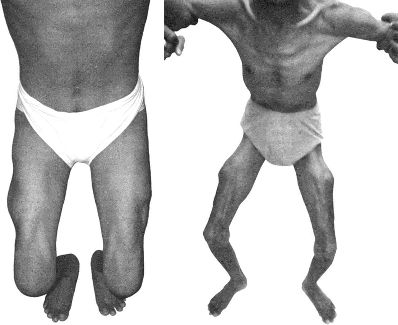 The man shown has limb girdle muscular dystrophy where his pelvic ...
