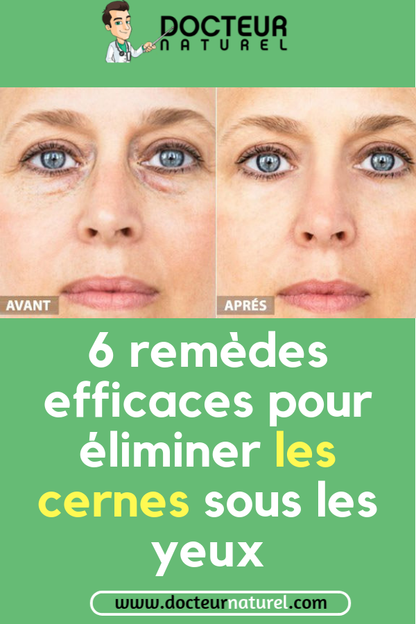 remede naturel cernes