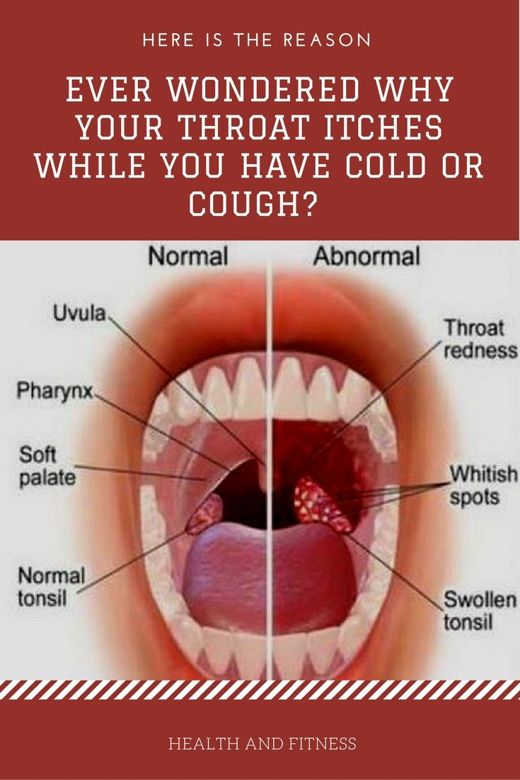 Ever Wondered Why Your Throat Itches While You Have Cold Or Cough ...