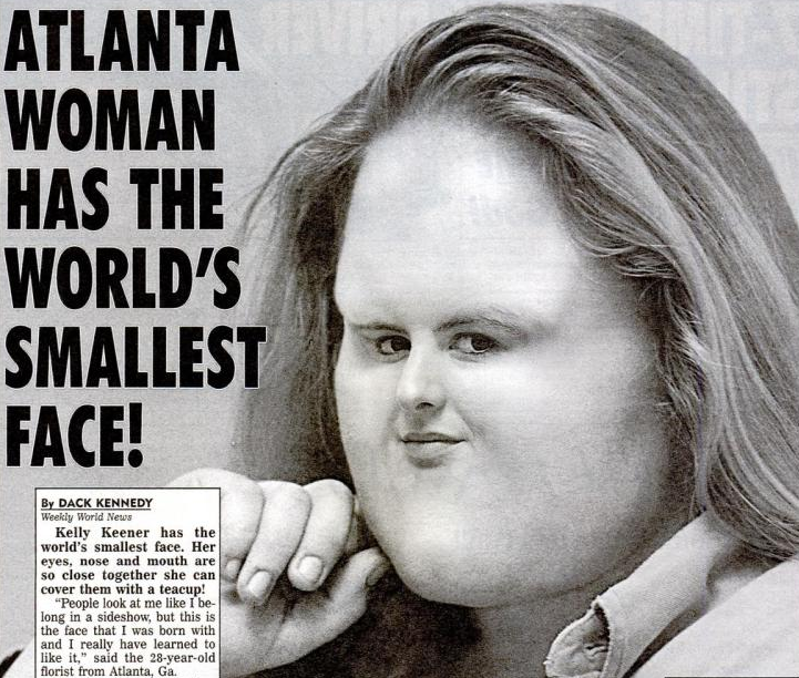 atlanta woman has the world�s smallest face what the
