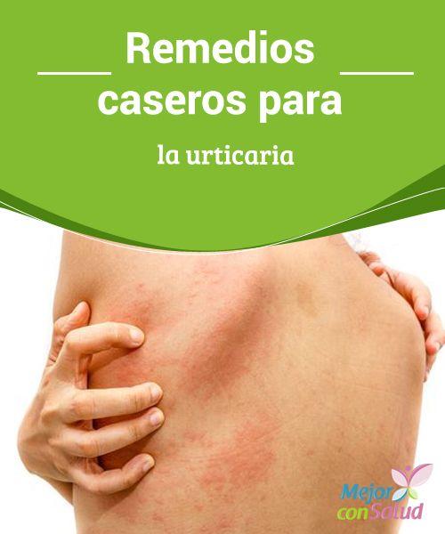 Remedios Caseros Y Naturales Para Tratar La Urticaria Remedios Caseros Remedios Comezon En La Piel