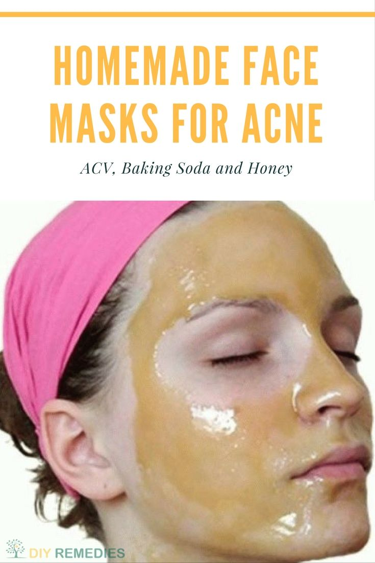 ACV Face Masks for Acne Natural DIY