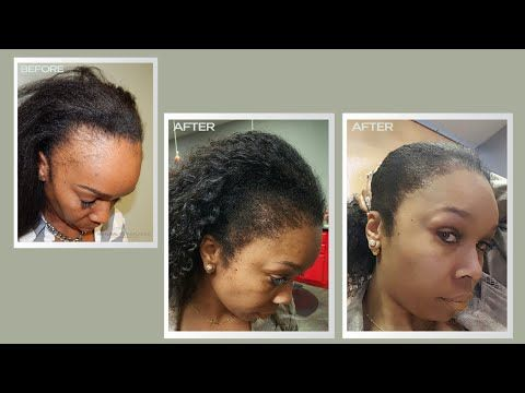 Best Female Hair Transplant Before And After Hair Loss