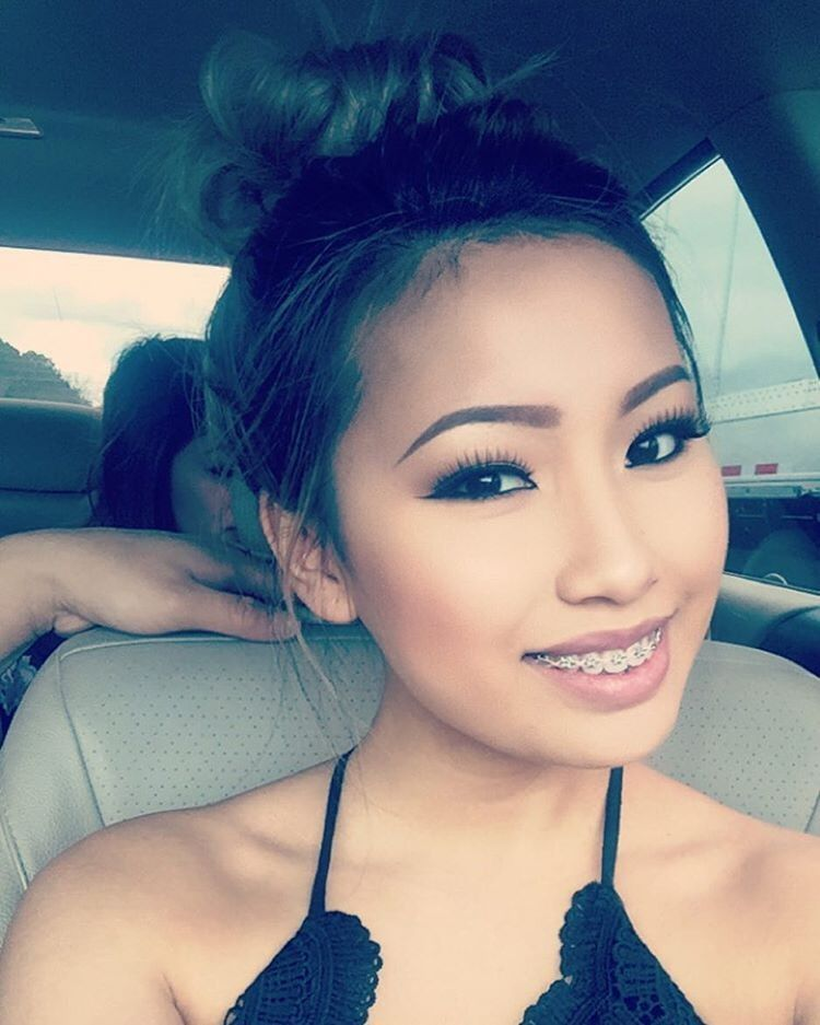 Braces sexy girls with Youngs