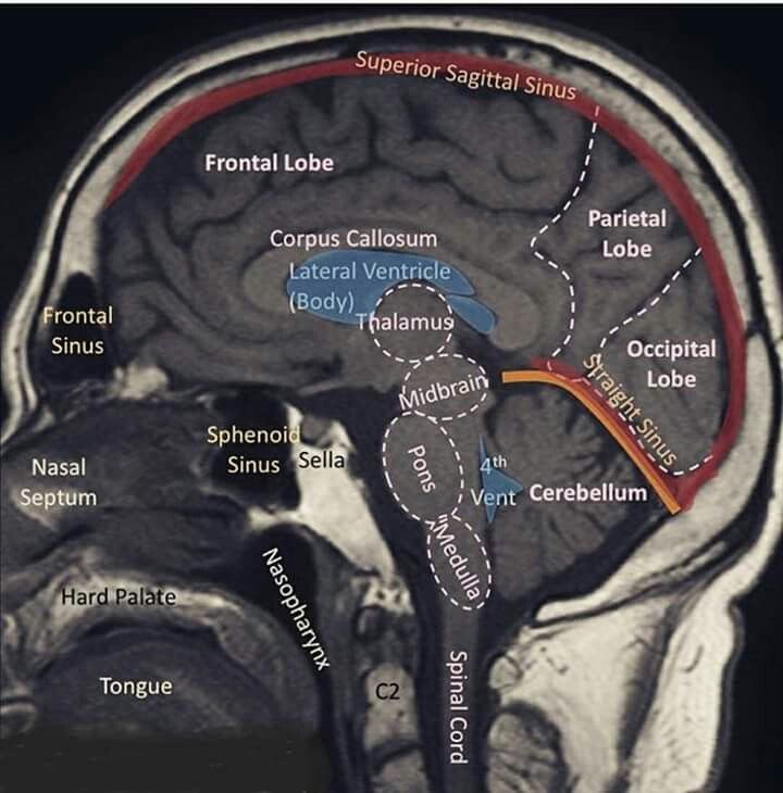 Pin by Jose M. Ojeda F. on El cerebro | Pinterest | Anatomy, Medical ...