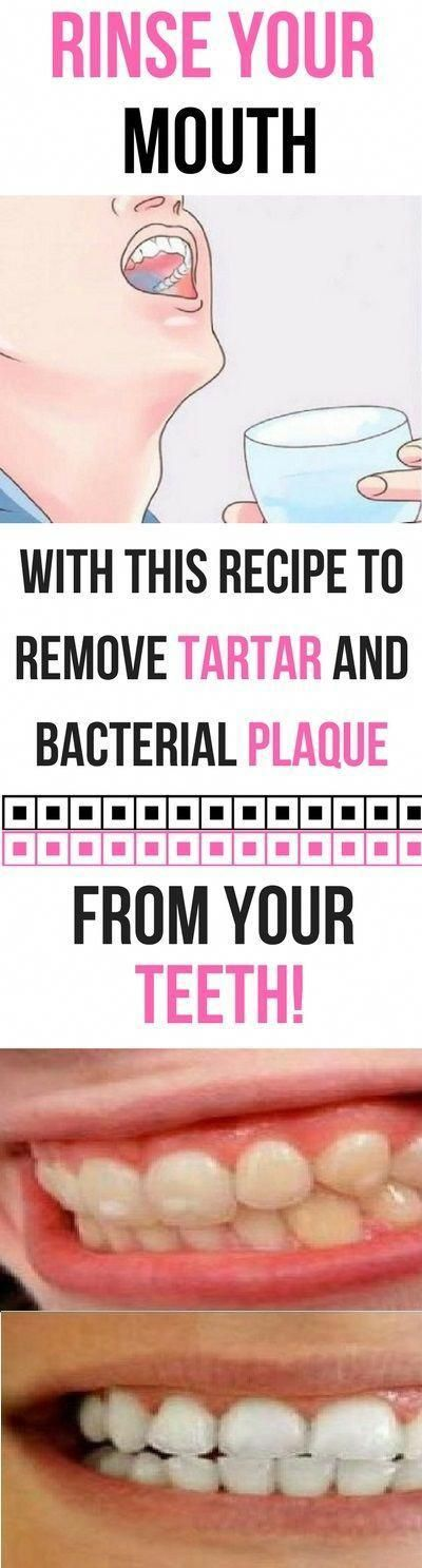 Rinse Your Mouth For 30 Seconds With This Recipe To Remove Tartar And Bacterial Plaque From Your Tee...