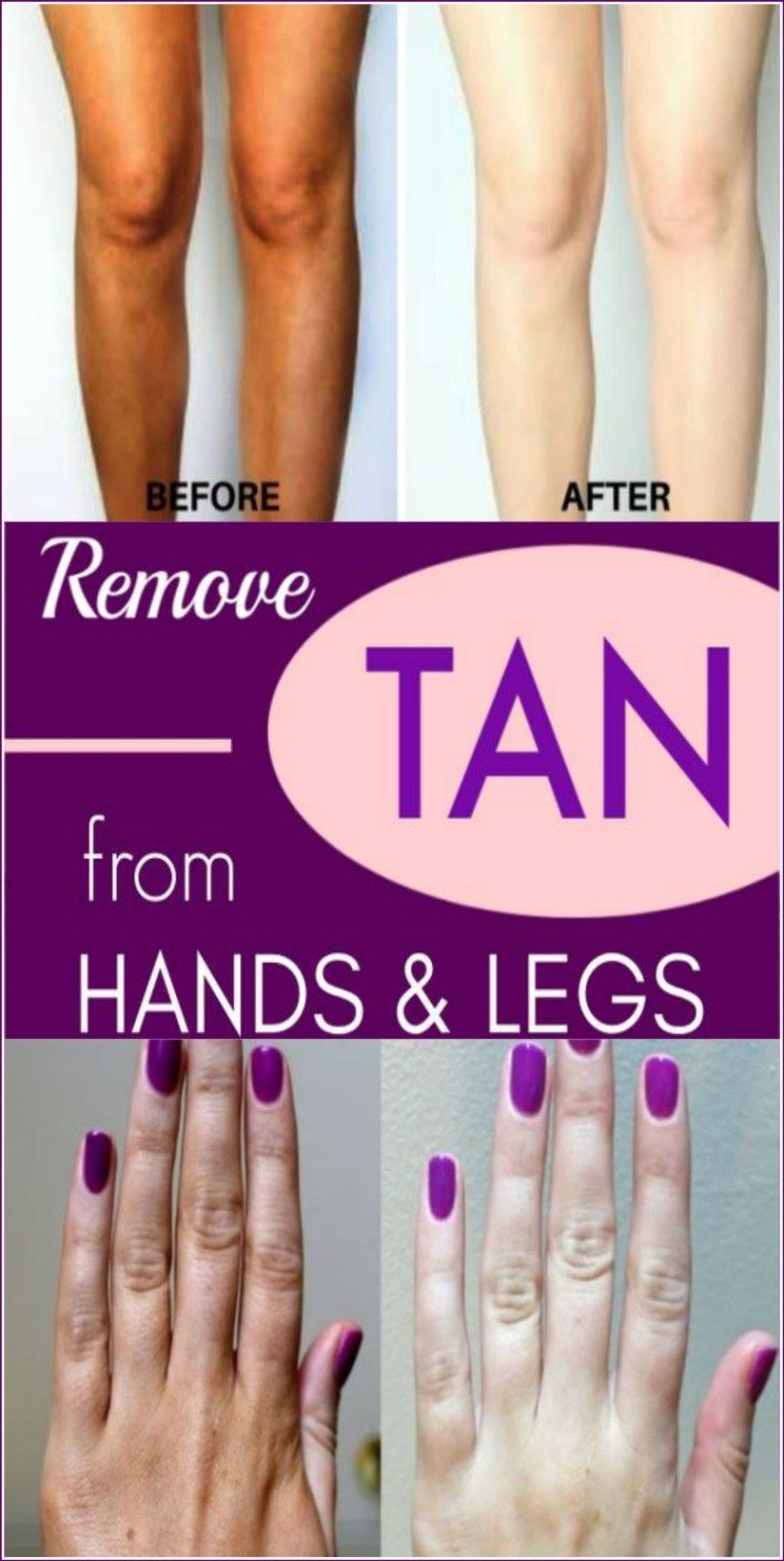 How To Remove Tanning From Hands And Feet Instantly 100