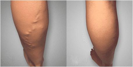 recenzii de la varicose ce medicamente pentru tratamentul picioarelor varicoase varicoase