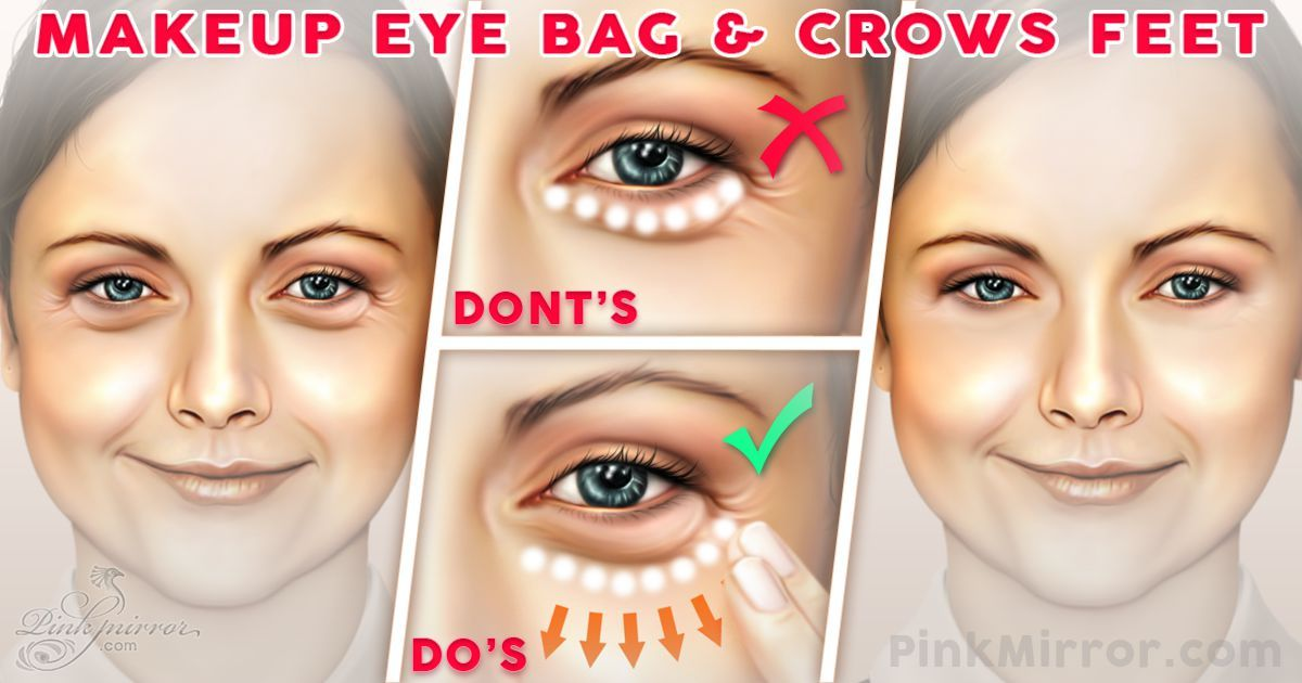 How to minimise the appearance of under eye bags under