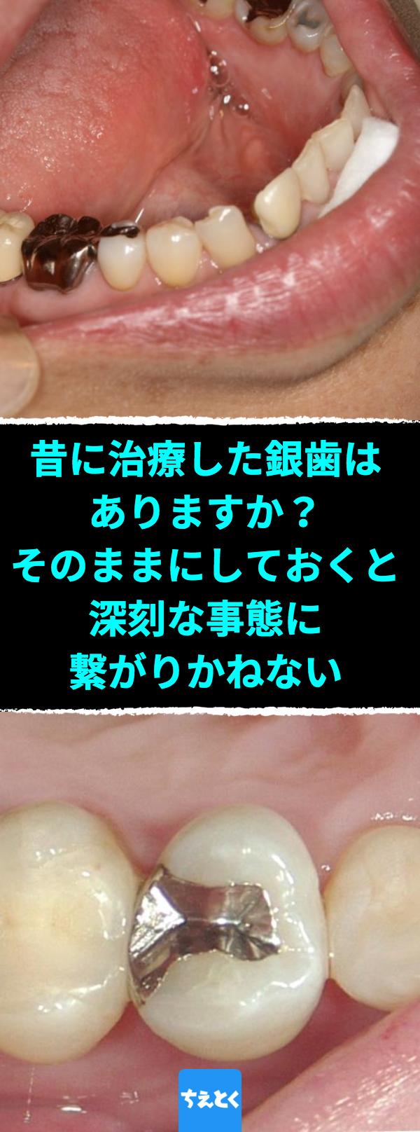 昔に治療した銀歯はありますか そのままにしておくと深刻な事態に