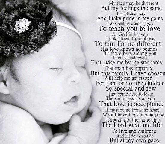Down syndrome poem.....just beautiful! | Just an extra ...