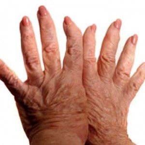 homeopathic remedies for arthritis