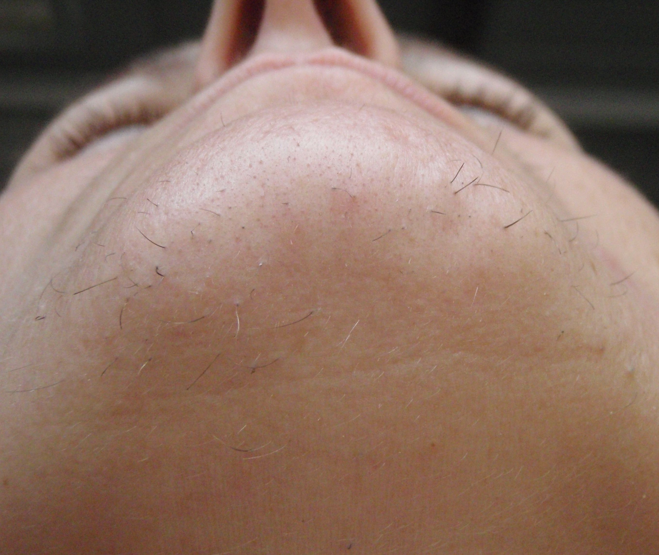 Hirsutism is excessive hairiness on parts of the body