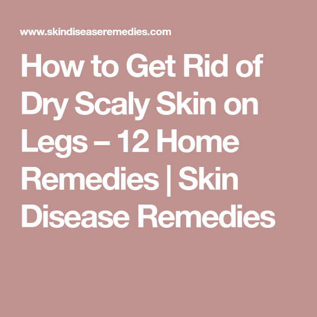 How To Get Rid Of Dry Scaly Skin On Legs 12 Home Remedies Skin Disease Remedies Dry Scaly Skin Dry Skin Diet Dry Flaky Skin