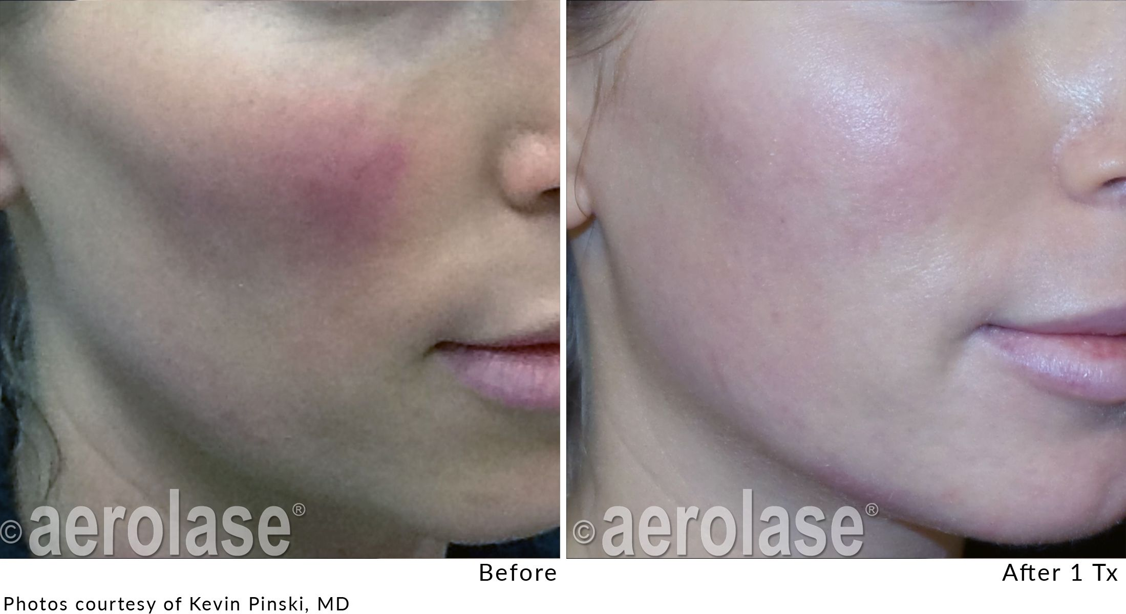Treating Rosacea After 2 Aggressive Treatments Using Aerolase