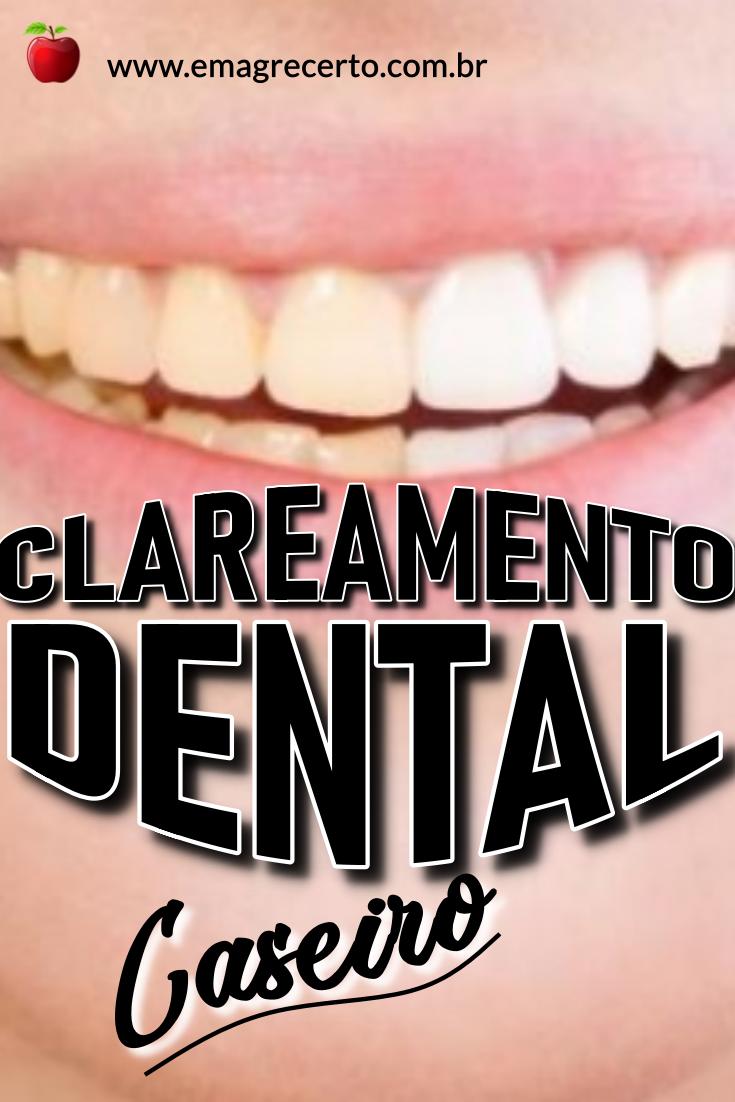 Como Clarear Os Dentes Em Casa Voce Quer Fazer Um Clareamento Dental
