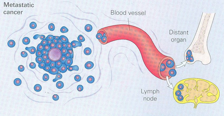 Cancer cell diagrams google search lets get cellular pinterest cancer cell diagrams google search ccuart Choice Image