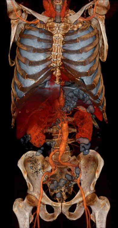 binnorie: Volume Rendering CT scans by voxel123   Anatomy ...