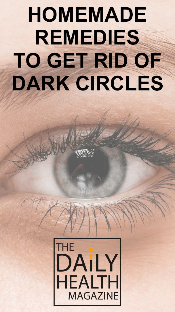 Homemade Remedies to Get Rid of Dark Circles Under Your ...