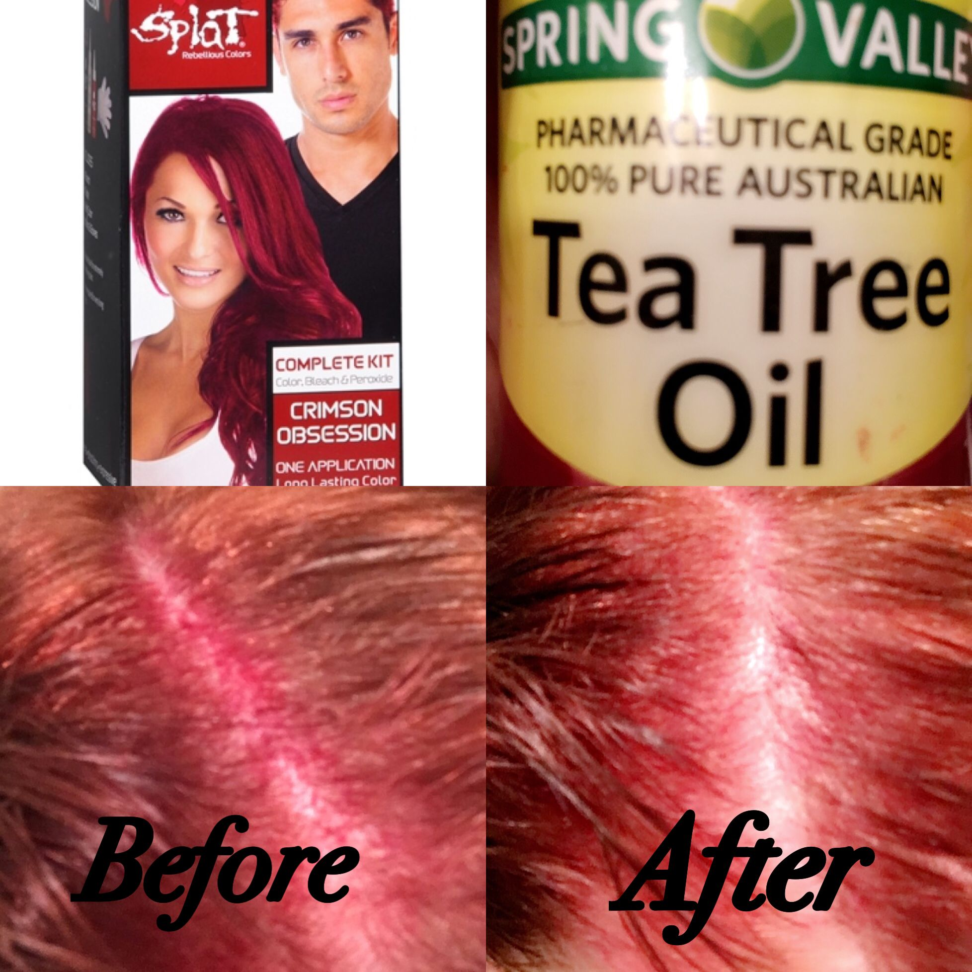 Get Rid Of Splat Hair Dye Stains On Your Scalp With Tea Tree Oil Splat Remove Stainedscalp Teatreeoil Splat Hair Dye Hair Dye Tips Dyed Hair