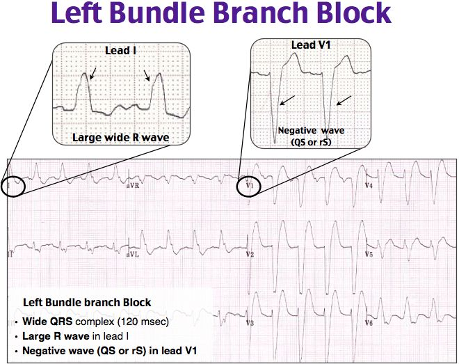 Ecg interpretation flowchart Nursing t Flowchart Nclex