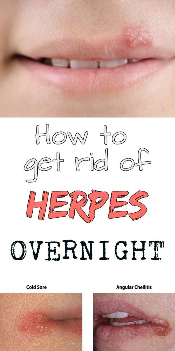 to soothe herpes ways vaginal