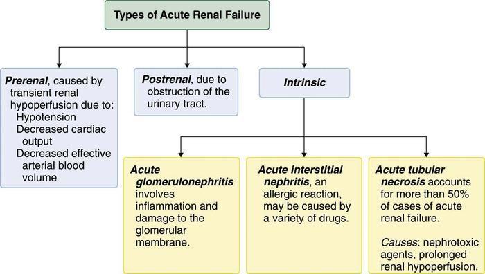 Acute Kidney Injury Acute Renal Failure Acute Kidney Injury Renal Failure